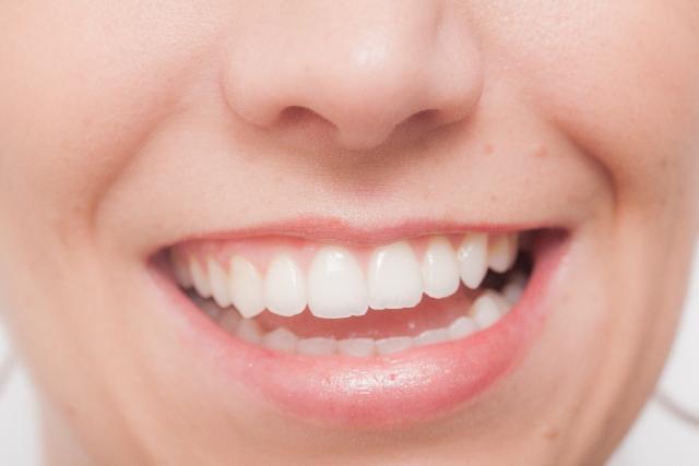 歯科金属 ニキビ
