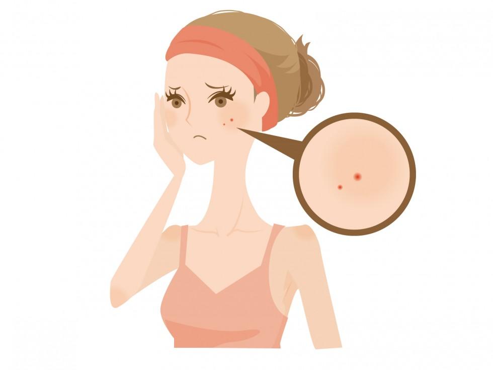 肌荒れの原因